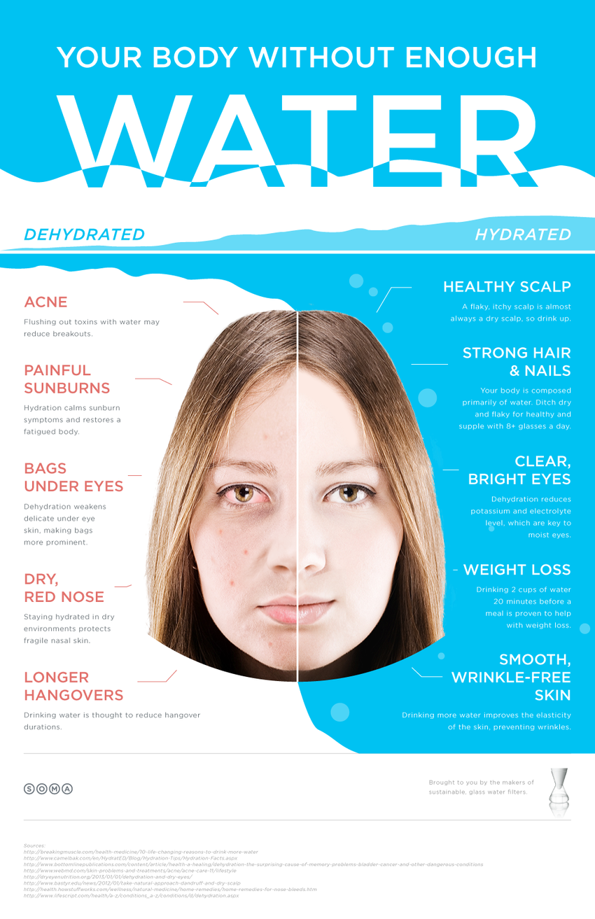 This Is Your Body Without Water (Infographic ...